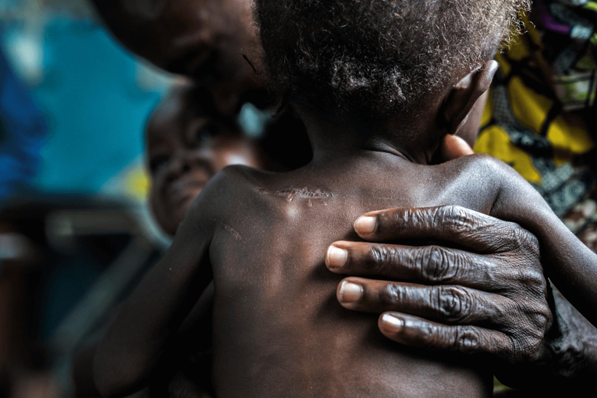 Gêmeos desnutridos de 17 meses trazidos para o centro de saúde de Ditekemena por seus avós.