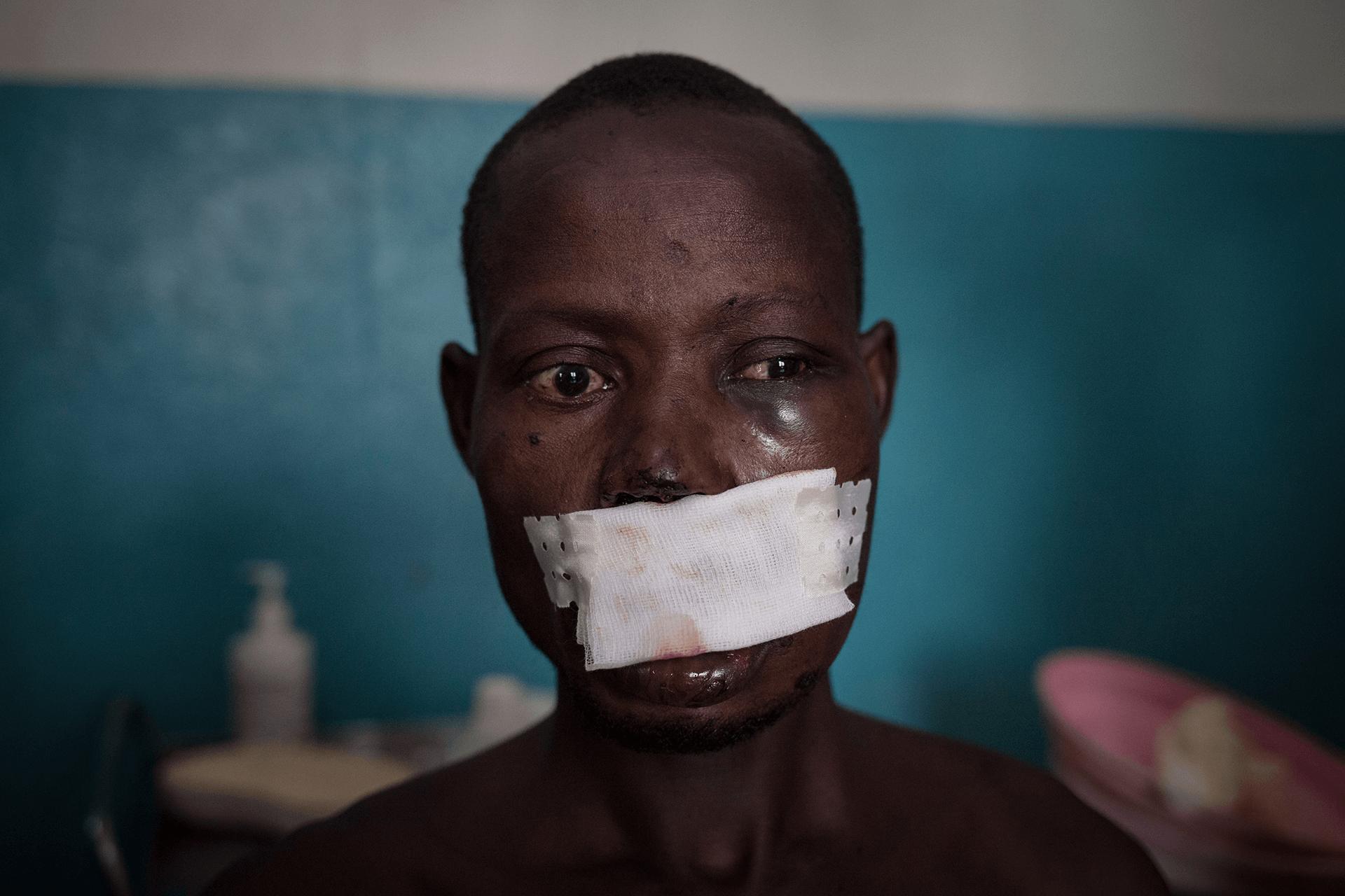 Violência na República Centro-africana